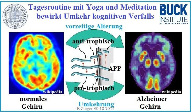 Gehirn_PET.jpg